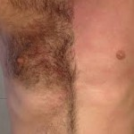 male chest wax