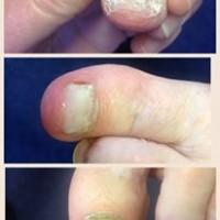 Wilde Pedique nail reconstruction