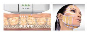HIFU skin tightening